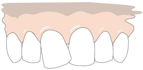 A crooked front tooth (A). The grinding lines are indicated (B). The end result, the tooth is ground and the front now looks much more regular (C).