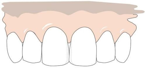 An adhesive layer is applied which is cured with light. Both front teeth are made wider, so that the gap is closed and the view remains symmetrical.