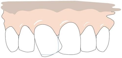 A crooked front tooth. Right: the grinding lines are indicated.