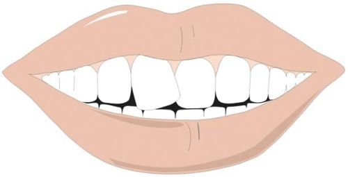 A crooked front tooth can be treated well.