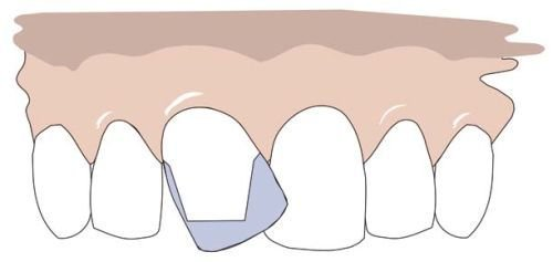 A crooked tooth is modeled to place a crown on it.