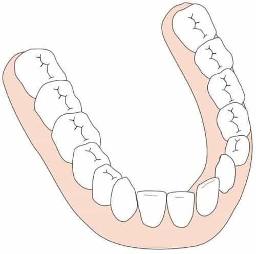 A small remaining gap in the lower jaw often closes automatically.