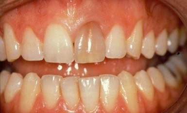 Discoloration by old root canal filling material.