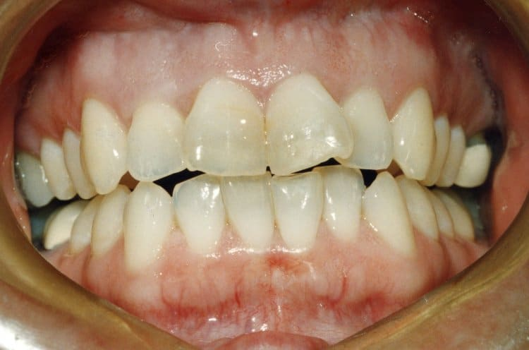 Front tooth is crooked - Problems and their solutions