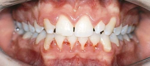 Gaps between the front teeth.