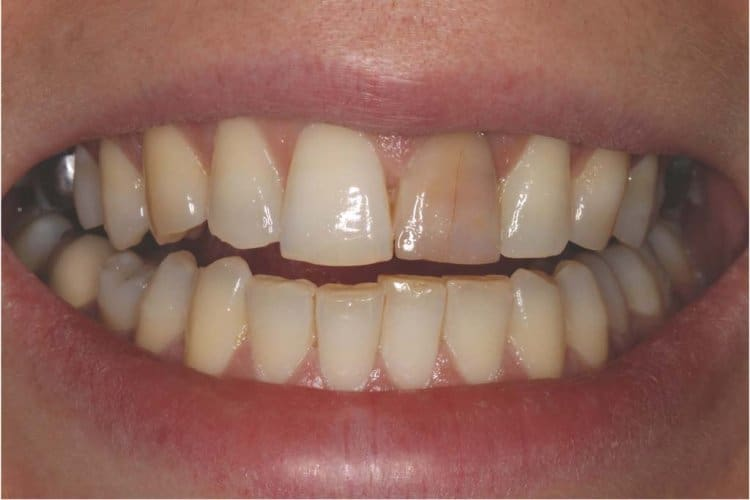 One front tooth is discolored - Problems and their solutions