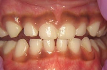Racial gingiva pigmentation.