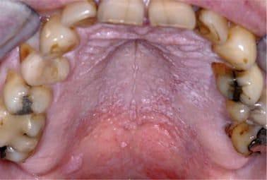 Stomatitis nicotina.