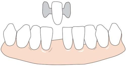 The hole of a pulled tooth can be filled with an etching bridge.