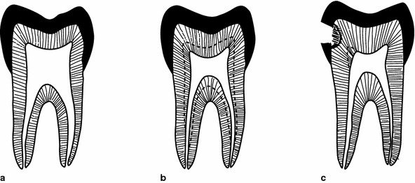 Types of dentin: a primary dentin; b secondary dentin (under dotted line); c tertiary dentin (under dotted line).