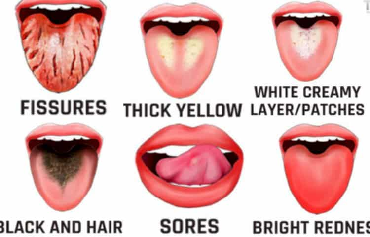 Your tongue gives you indications that your health is not right; do not ignore these symptoms!