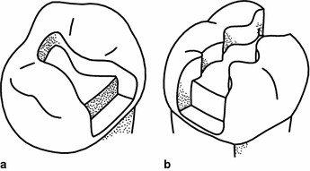 a Class II preparation, DO in a premolar; b Class II preparation, MOD in a molar.
