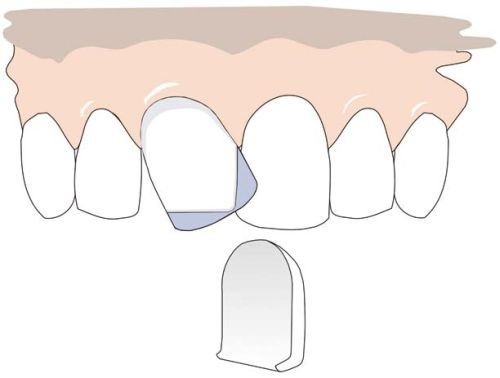 The tooth parts falling outside the row are ground and the edges are chamfered. Right: The result after applying a facing.