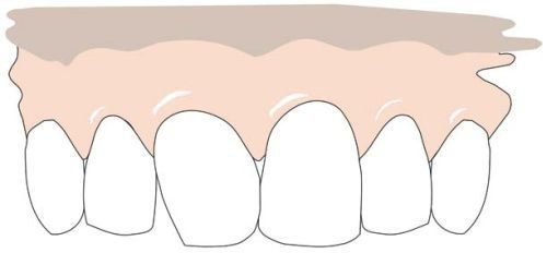 The tooth has been ground. Right: the end result after grinding and supplementing the missing corner with composite.