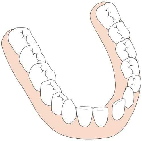 A crooked undercurrent. Right: sometimes it is a solution to pull the crooked tooth.