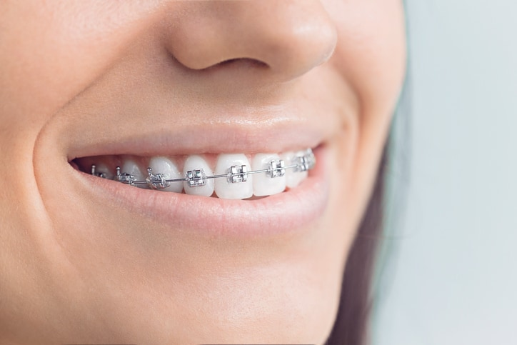 How To Know If Your Child Needs Dental Braces