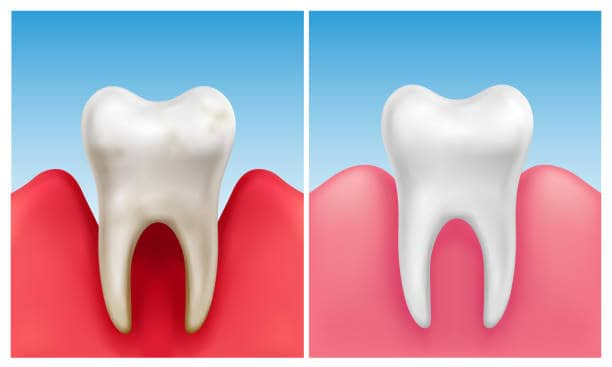 Sensitive teeth due to receding gums