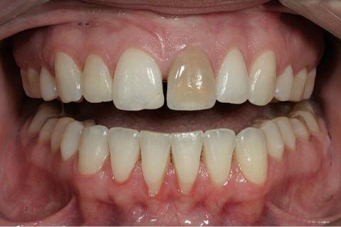 discolouration teeth