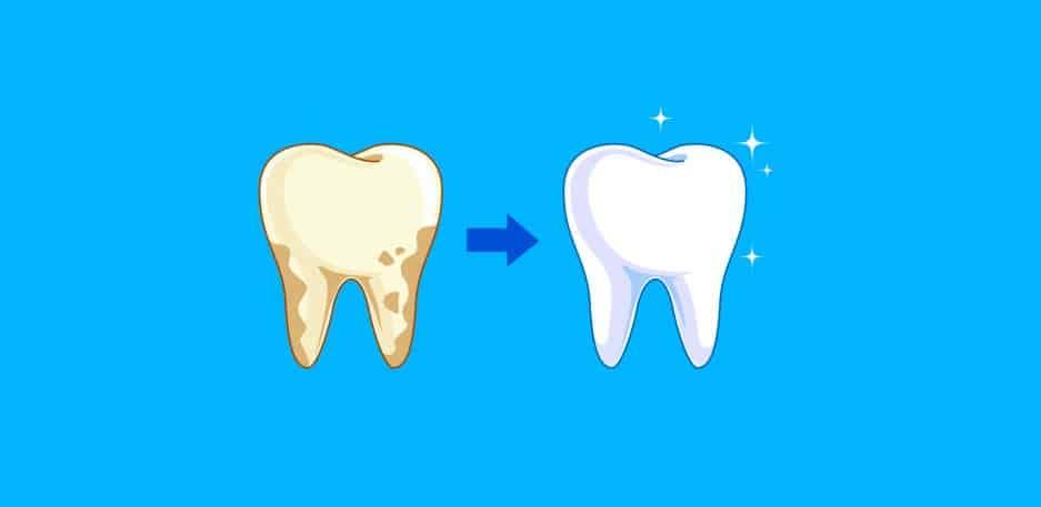 causes yellow teeth