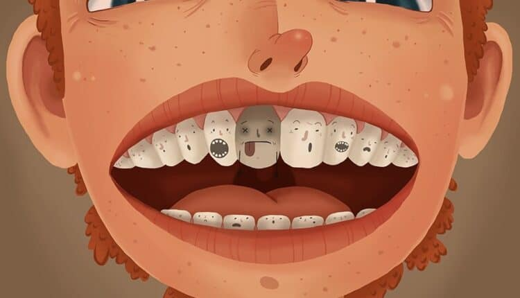Dead Tooth: Causes, Symptoms, Color and Treatment ...