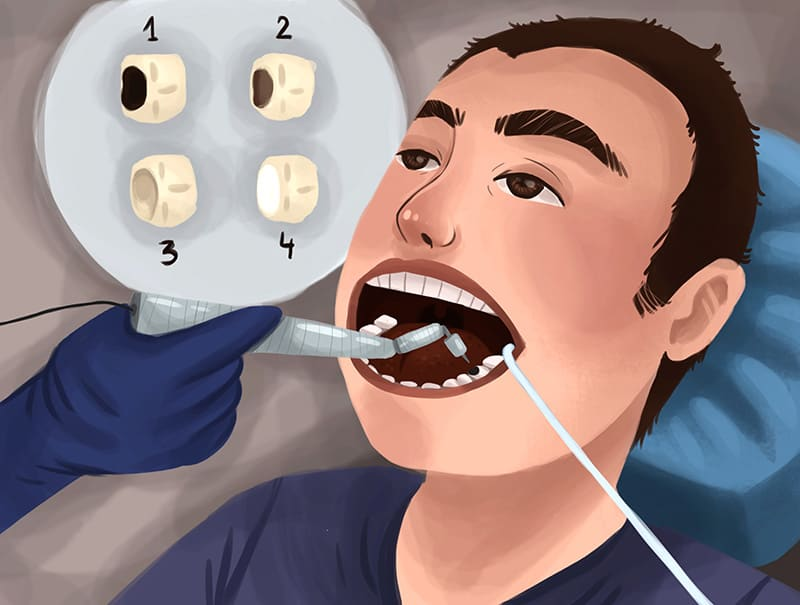 does cavity filling hurt